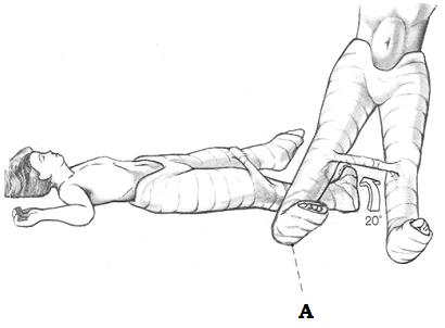 Послеоперационная иммобилизация наложением тазобедренной повязки (полимерный материал) с поворотом прооперированной ноги внутрь на 20°. Если вторая нога еще не прошла операционную коррекцию, то из-за риска «перелома о край гипса» повязка накладывается и на всю нижнюю конечность. Если с другой стороны уже имплантирован гвоздь, то можно оставить коленный сустав свободным.