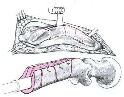При более сильных искривлениях возможно уплощение диафиза бедренной кости по типу сабельных ножен. Форма поперечного сечения метафизов становится овальной или круглой. Рассверливание диафиза и имплантация гвоздя подходящей толщины при такой деформации невозможны: вентральный кортикальный слой уплощенного диафиза после корректирующих остеотомий с вентральной стороны распиливается по длине, две костные пластинки раздвигаются и гвоздь укладывается внутрь. Костные пластинки фиксируются чрескостным швом.