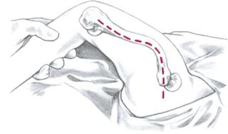 Кожный разрез латерально на дистальной части бедра вдоль межмускульной перегородки до трех п/п над верхушкой вертела. При сильной деформации кости надрез делается в соответствии с деформацией.