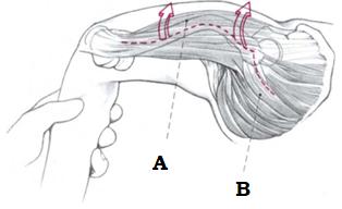 Разделение широкой фасции бедра, рассечение большой ягодичной мышцы по ходу волокон до трех п/п над верхушкой вертела.