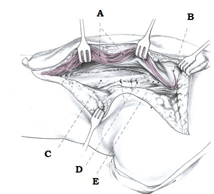 Отделение латеральной широкой мышцы до дистальной части бедренной кости с помощью L-образного надреза. Электрокоагуляция прободающих вен.